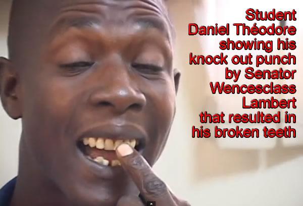 Daniel Theodore showing teeth broken by Wencesclass Lambert