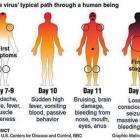 Preventing Ebola Outbreak Haiti