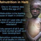 Malnutrition Haiti
