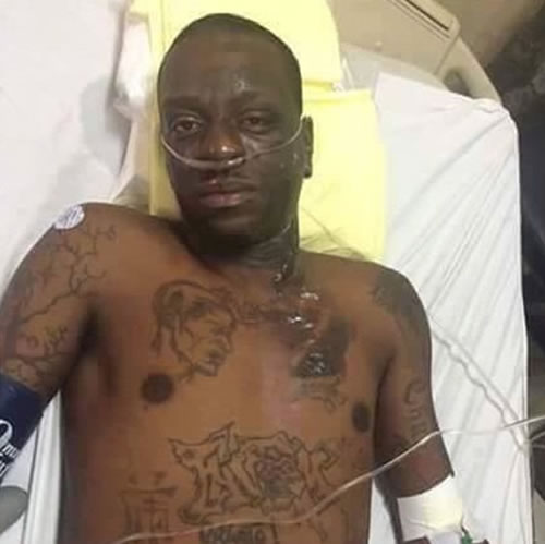 Fantom in hospital following Kanaval accident