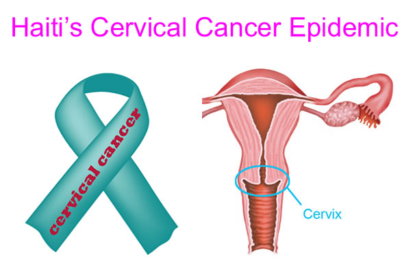 Haiti's Cervical Cancer Epidemic