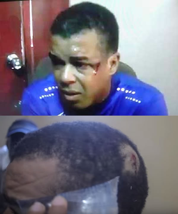 Steven Benoit wounded by rubber bullet during protest